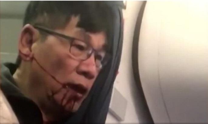 Пасажира United Airlines витягли з літака, щоб посадити свого працівника