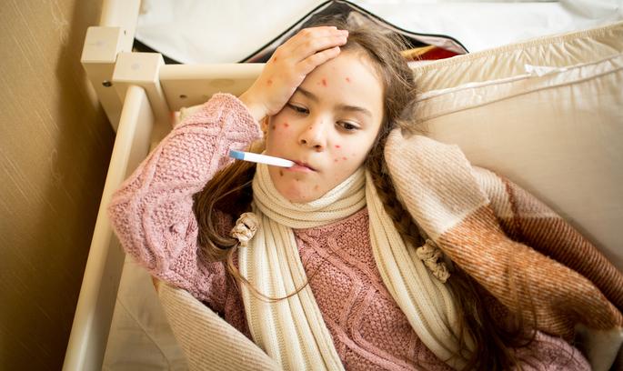 Час робити щеплення: у 15 регіонах України хворіють на кір
