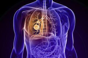 Штучний інтелект, навчений Google, виявляє рак легенів точніше за лікарів
