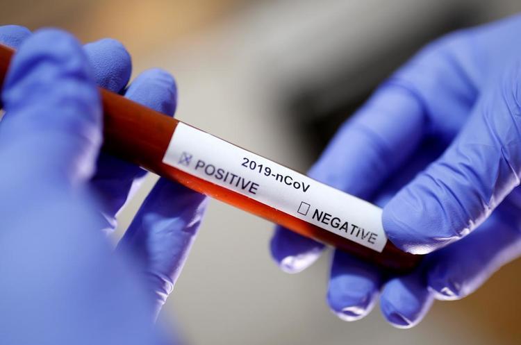 Експрес-тести на коронавірус можна закупити через Prozorro