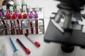 В ЄС зібрали майже 10 млрд євро на вакцину від COVID-19 всього за три тижні