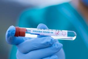 За сутки в Украине диагностировали более 800 случаев COVID-19