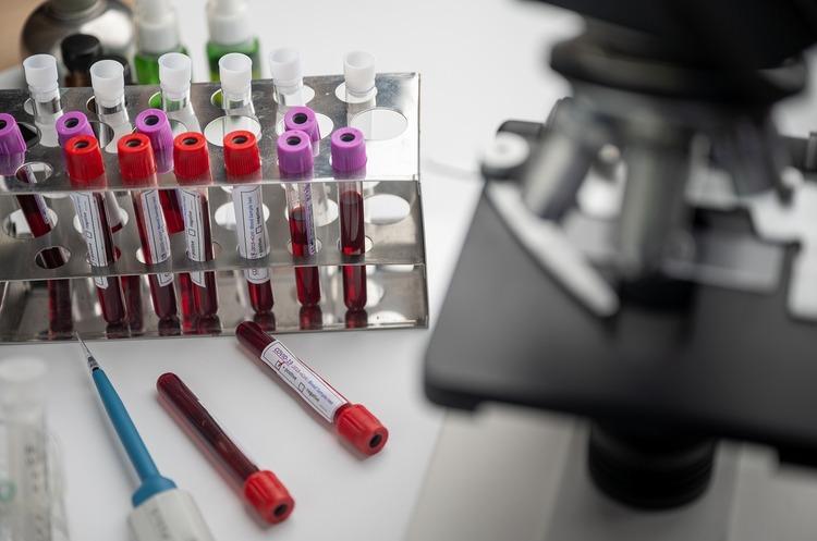 Вакцина від COVID-19 може виявитись малоефективною – дослідження
