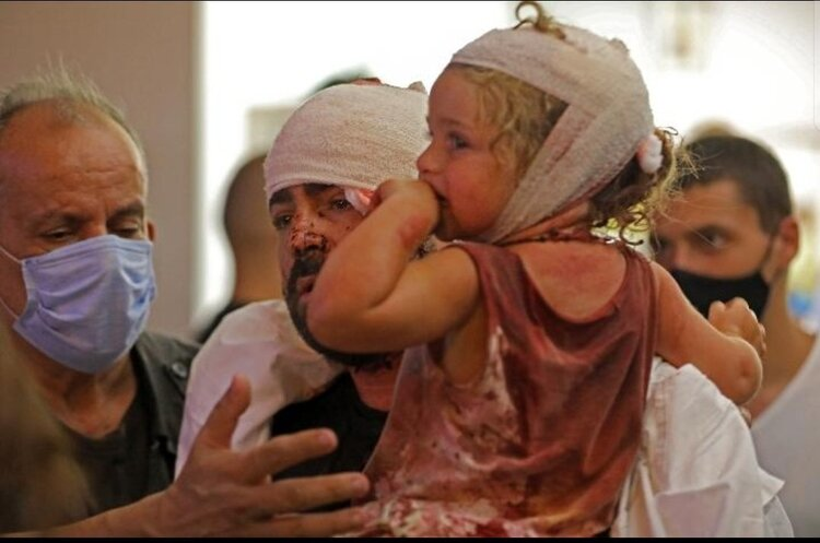 Лікарні в Бейруті не можуть впоратися з потоком постраждалих від вибуху