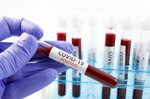 В Україні за добу зареєстрували 3 372 випадки COVID-19