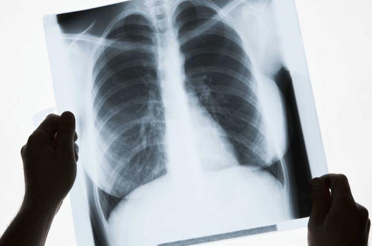У пацієнтів з легким перебігом COVID-19 легені відновлюються гірше – дослідження