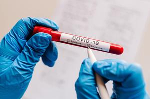 В Україні за добу зафіксовано  10 282 нових випадків інфікування COVID-19