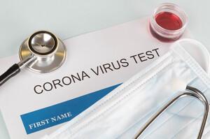 В Україні за добу зафіксували 846 нових випадків COVID-19