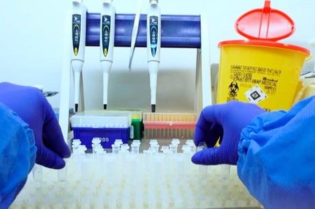 Как пройти ПЦР-тест на коронавирус в Киеве?